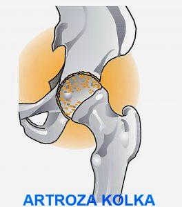 bolecine v krizu in kolku, artroza kolka