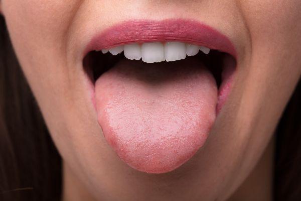 simptom oralnega alergijskega sindroma je otečen jezik