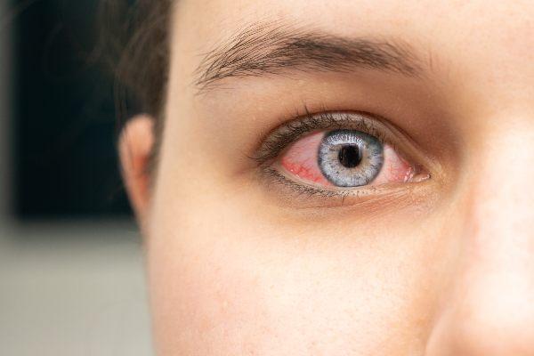 rdeče oči so značilne za očesne alergije in suhe oči
